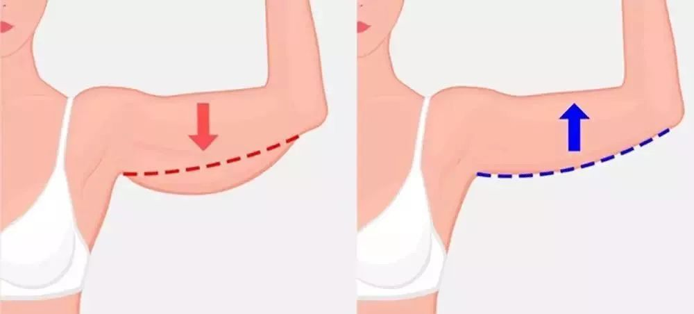 7天维密天鹅臂塑形计划,练就纤纤细臂-第8张图片-爱课啦