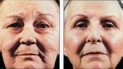抗氧逆龄美肤术:每天15分钟,锁住鲜活少女脸(战痘/美白/祛皱/抗衰老)-第13张图片-爱课啦